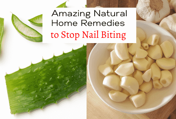 Natural Home Remedies to Cure & Stop Nail Biting